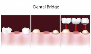Dental Bridges Diagram | Clinton Township MI Dentist