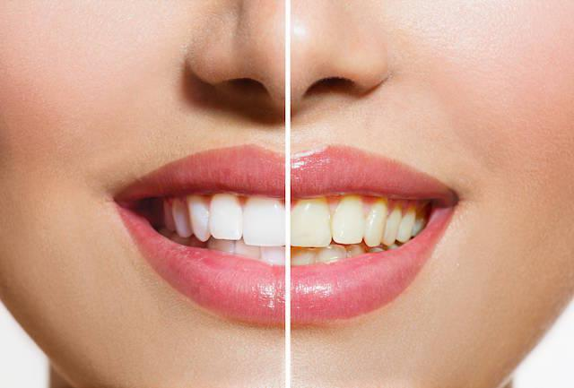 Teeth Whitening Difference | Teeth Whitening Clinton Township MI