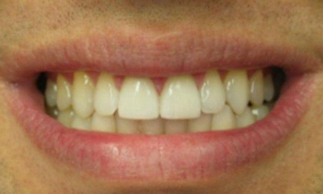 Patient who received Porcelain Crowns