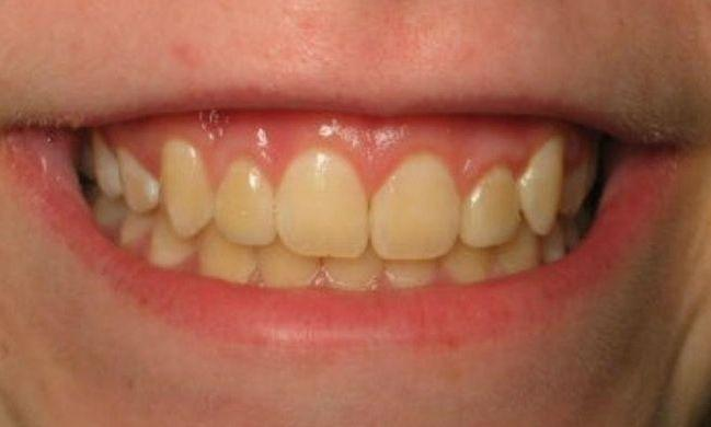 patient with porcelain veneers | Clinton Township MI