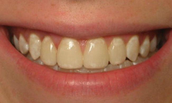 Patient after porcelain veneers
