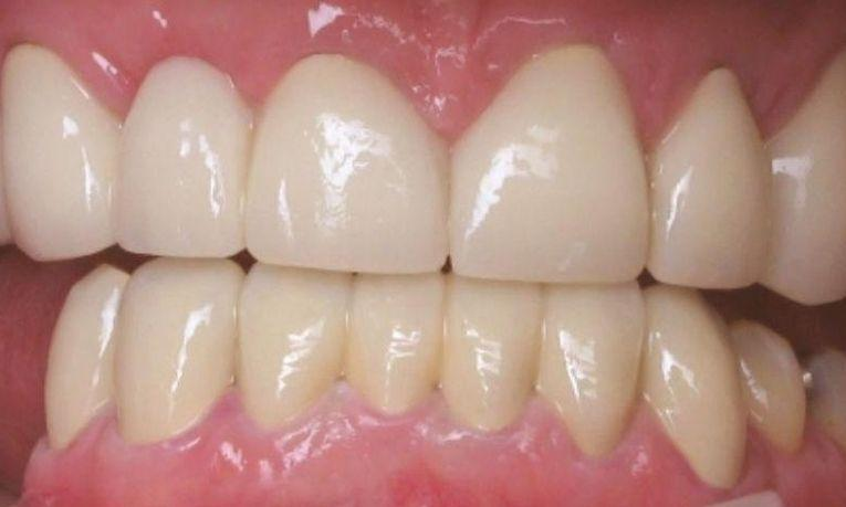 Porcelain Crowns in Clinton Township