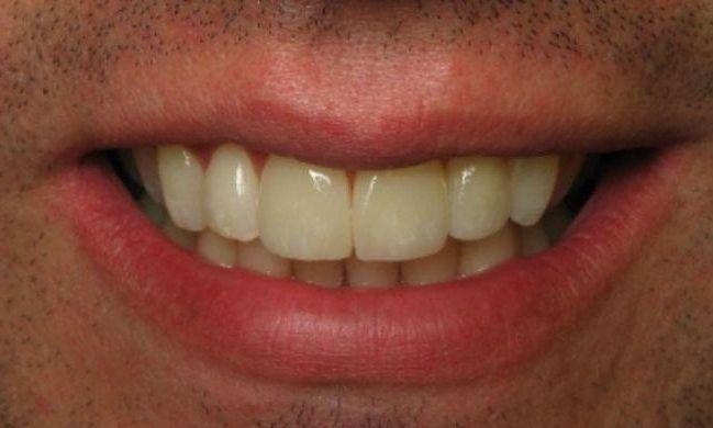 patient before receiving veneers and dental crowns