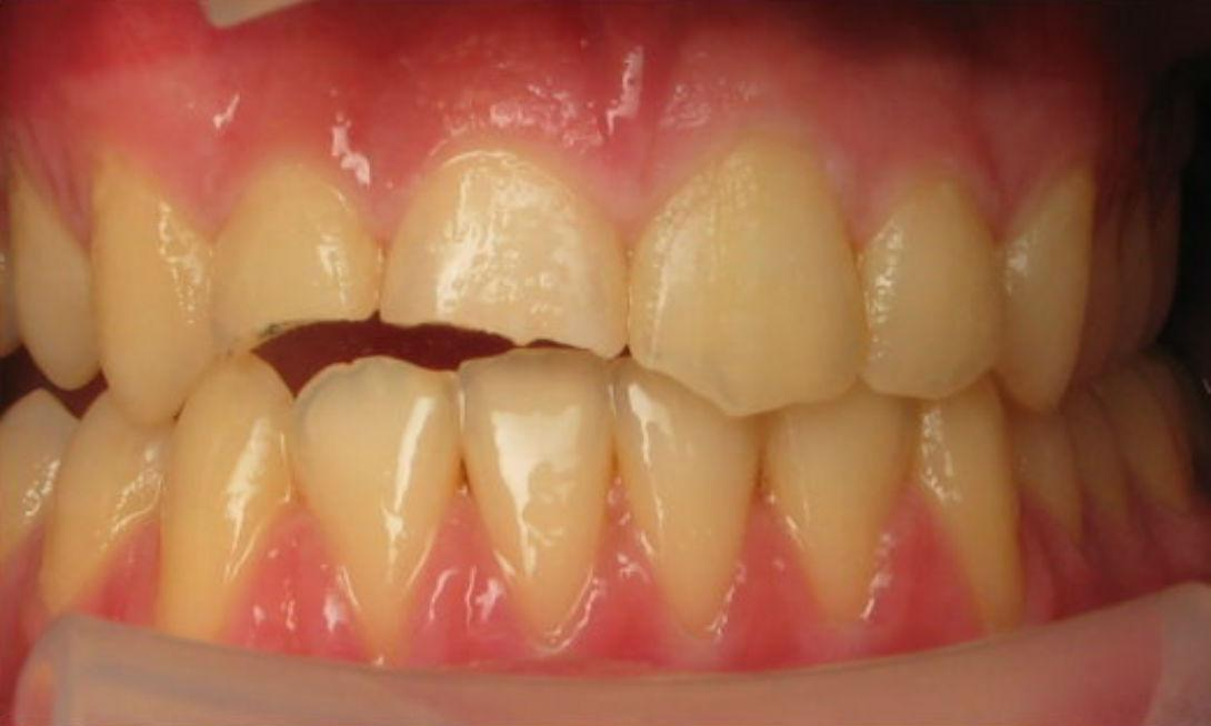 Patient with broken teeth