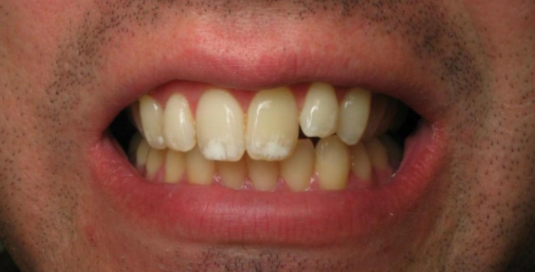 Patient before receiving porcelain veneers and crowns