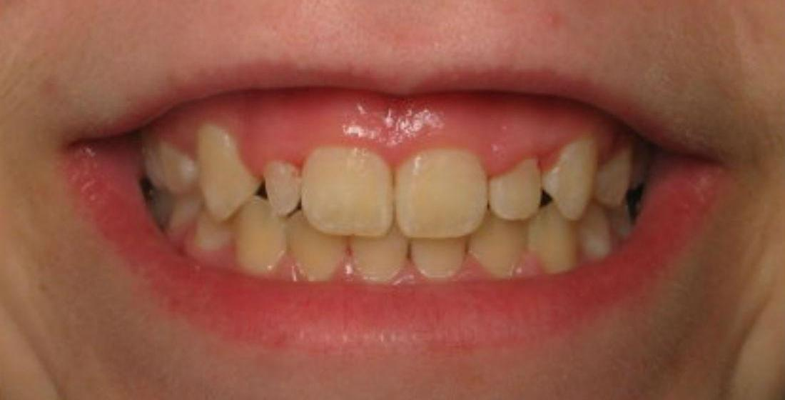 Patient before dental veneers