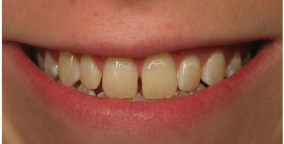 Patient before receiving porcelain veneers