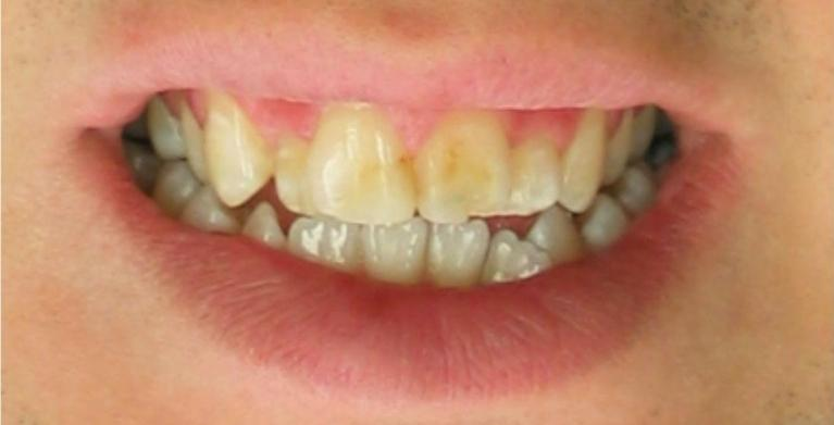 Dental-Bonding-in-Clinton-Township-Before-Image