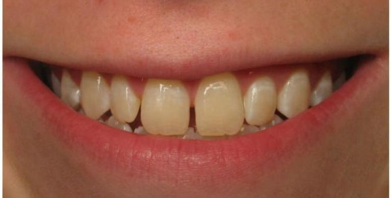 Porcelain-Veneers-in-Clinton-Township-Before-Image